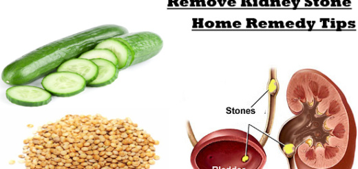 Natural Relief For Kidney Stones Tips For Fast Relief