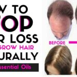 Great Loss Of Hair Tips From The Professionals